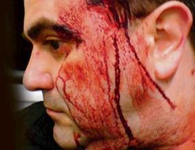 Глобяват Марселиньо заради инцидентa в дискотека