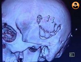 Публикуваха скенер от главата на Петър Чех