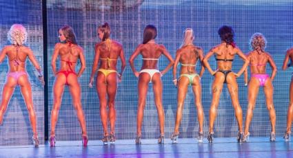 Стоматоложка е №1 на Sportima Bikini Fitness
