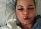 ММА боец смаза от бой приятелката си порнозвезда (шокиращи снимки)