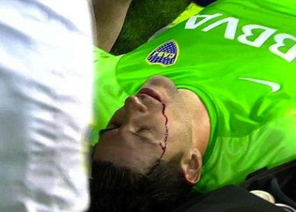 Страхотно пирошоу и ранен вратар на мач в Аржентина (видео)