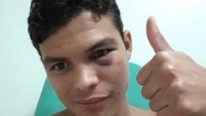 Тиаго Силва показа щетите от удара на Бербатов