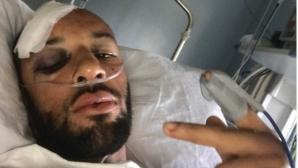 Двама британски спринтьори са в болница след пътен инцидент
