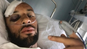 Оперират пострадалия при пътен инцидент спринтьор Джеймс Елингтън