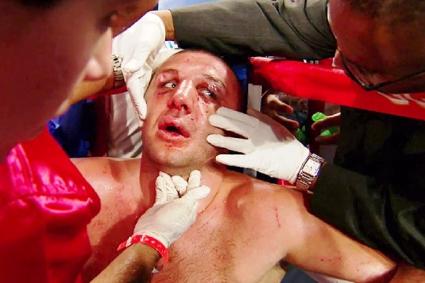 Вижте излезлия от кома боксьор Магомед Абдусаламов (ВИДЕО)