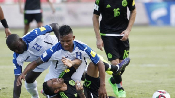 Национал на Хондурас получи ужасяваща контузия