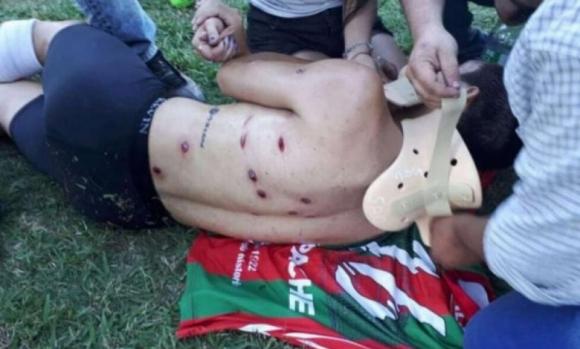 Невиждан терор: полицаи надупчиха футболист с 13 куршума по време на мач (видео+снимки)