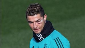 Кристиано тренира с насиненото око, но няма да играе