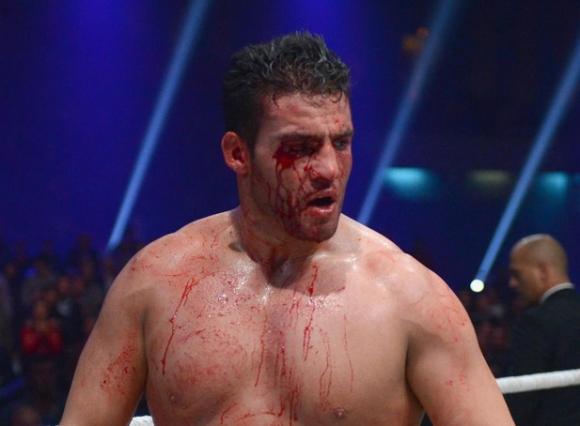 Хванаха Мануел Чар с допинг, взеха му пояса на WBA и отмениха мача с Фрес...