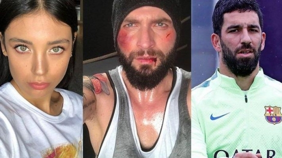 Заради жена - бивш играч на Барселона сучпи носа на турски певец