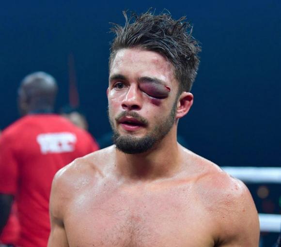 Антъни Игит получи жестока травма на окото