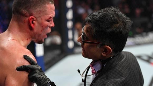 Конър Макгрегър разкритикува щаба на Нейт Диас за UFC 244
