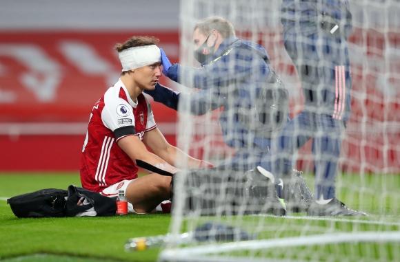 Арсенал няма да рискува с Давид Луис след ужасяващия...